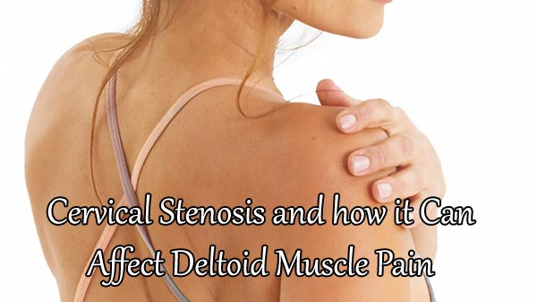 Cervical Stenosis and how it Can Affect Deltoid Muscle Pain