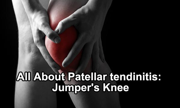 All About Patellar tendinitis: Jumper's Knee