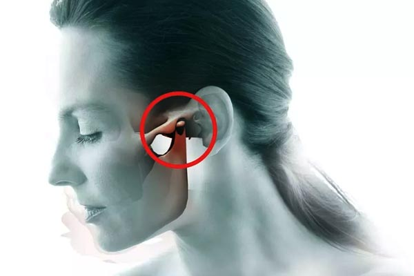 homeopathic remedies for tmj pain