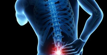Do You Have Back Pain and Multiple Sclerosis?