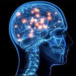 fibromyalgia neurological