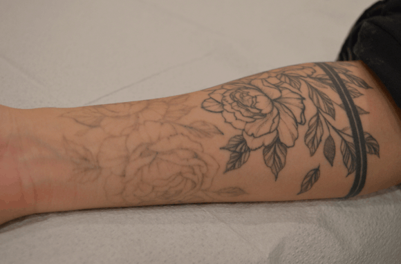 Is Laser Tattoo Removal Worth It? - Tattoo Removal ...