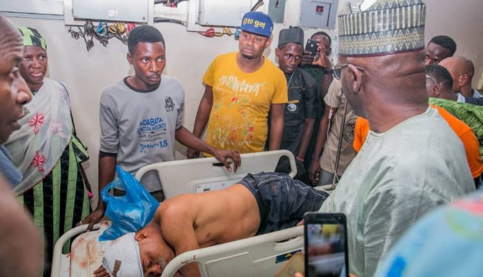 Another APC member was attacked in the head by PDP thugs