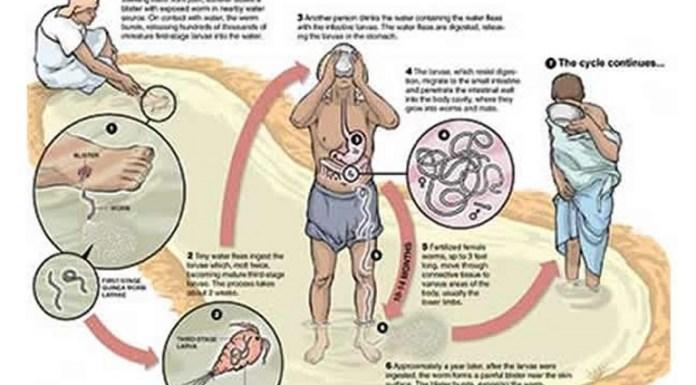 Guinea worm life cycle