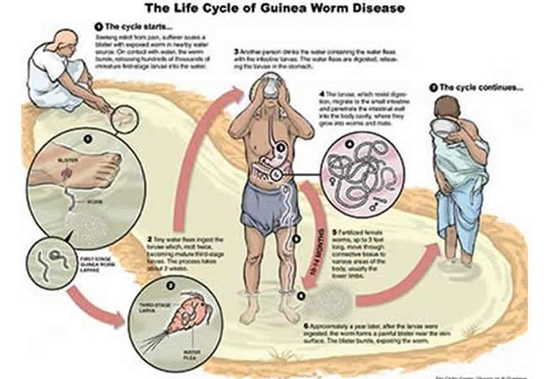 Guinea worm life cycle