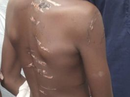 Some of the detainees in the Kaduna Islamic school had visible injuries