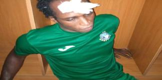 Enyimba player injured by Plateau United fans