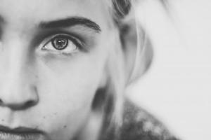 Fibromyalgia: An Overview