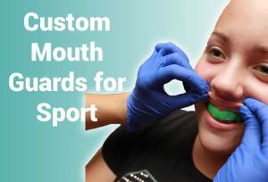 custom mouth guards for sport in bristol