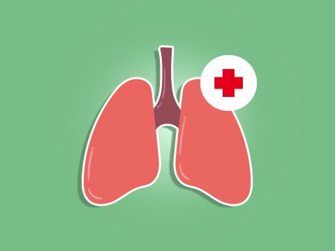 e-learning-plongee-niveau-4-suppression-pulmonaire