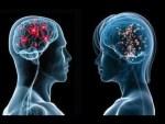Sexo femenino con menor cerebro alcanza ganar el partido 2,5 a 2