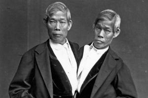 Los hermanos siameses originales, Eng y Chang.