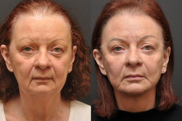 before and after archive - facial plastic surgery | cincinnati, oh