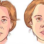 Cuando la cara se paraliza – Parálisis facial