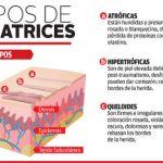 Un buen cirujano plástico previene, disimula o esconde las cicatrices