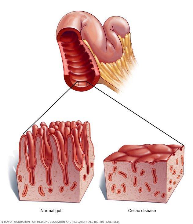 Celiachia cagliari - sardegna