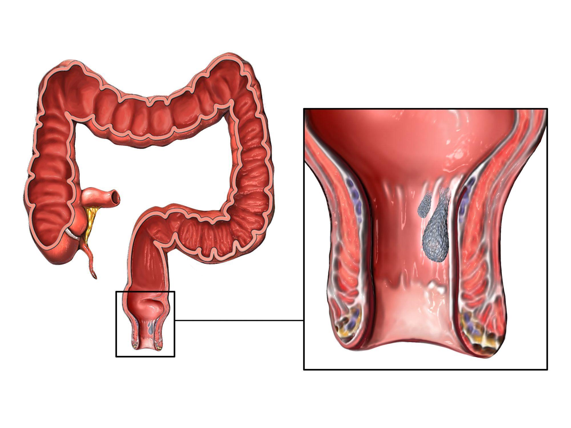 Emorroidi interne sardegna-cagliari