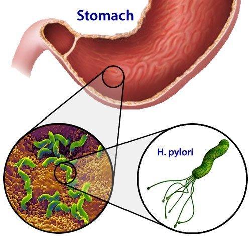 Breath test per helicobacter pylori cagliari-sardegna