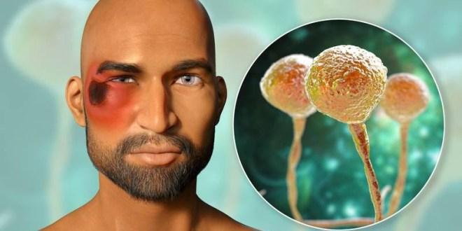 COMIENZA EN LAS FOSAS NASALES/ ¿Qué es el 'hongo negro' y cuáles son los síntomas de esta enfermedad en pacientes con COVID-19?