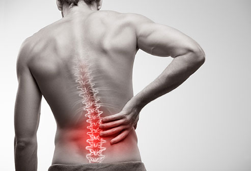 Back Injury at Work Claims