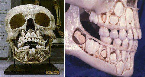 Crânio de uma criança ainda com dentes de leite