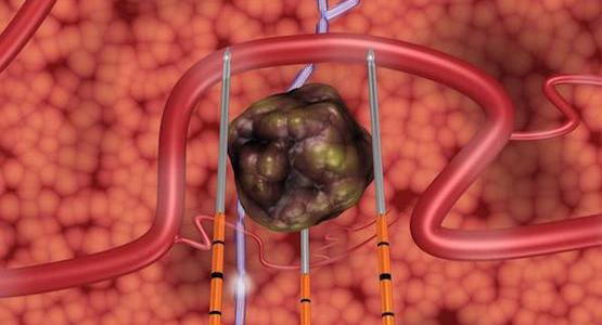 Irreversible Electroporation in Pancreatic Cancer