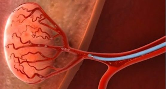 What is chemoembolization?
