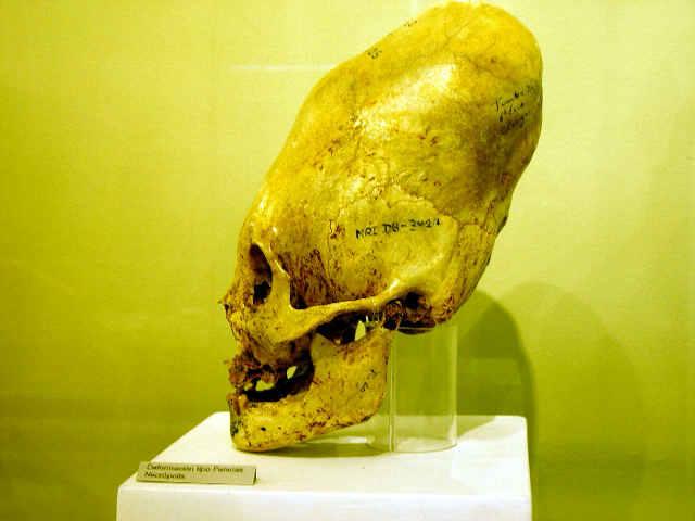 Altered skull