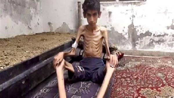 El Consejo Revolucionario Local de Madaya, Siria, distribuyó la foto de un niño malnutrido en la ciudad sitiada. / AP