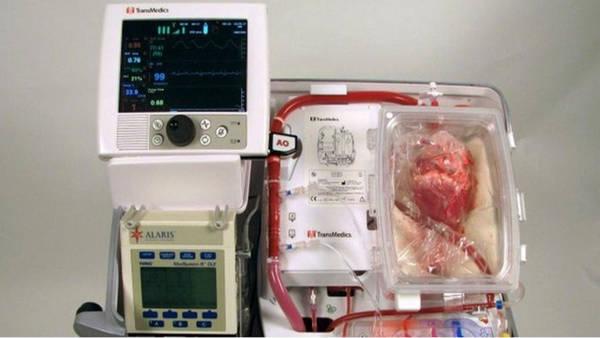 La máquina que permite resucitar corazones. (Hospital Saint Vicent's)