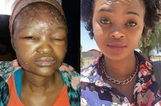 Kelebogile Masisi, before and now