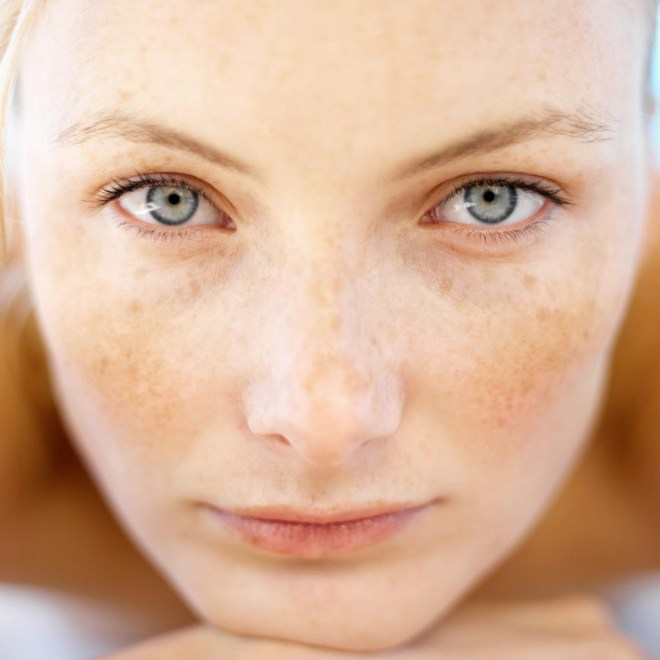 rosto de mulher de pele clara, com sobrancelhas castanho claro, olhos verdes claro, tem na face, algumas suaves manchas escuras