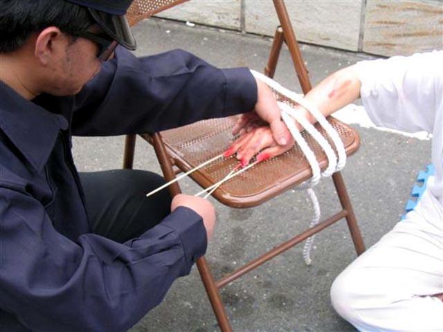 Bamboo Splints under Finger Nails