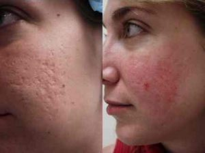 How to get rid of pimple bump scars