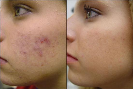 How Do You Get Rid Of Papules