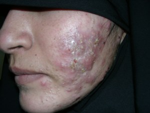 Get-Rid-of-Cystic-Acne.jpg?resize=300,225