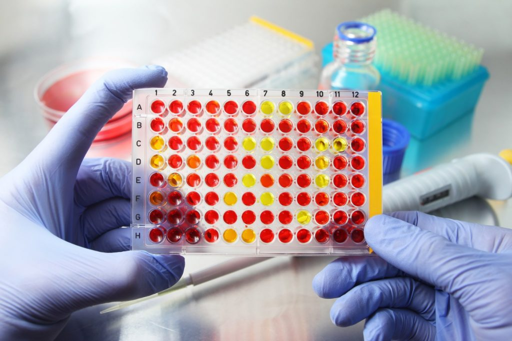 Different Test Drug Cups Urine