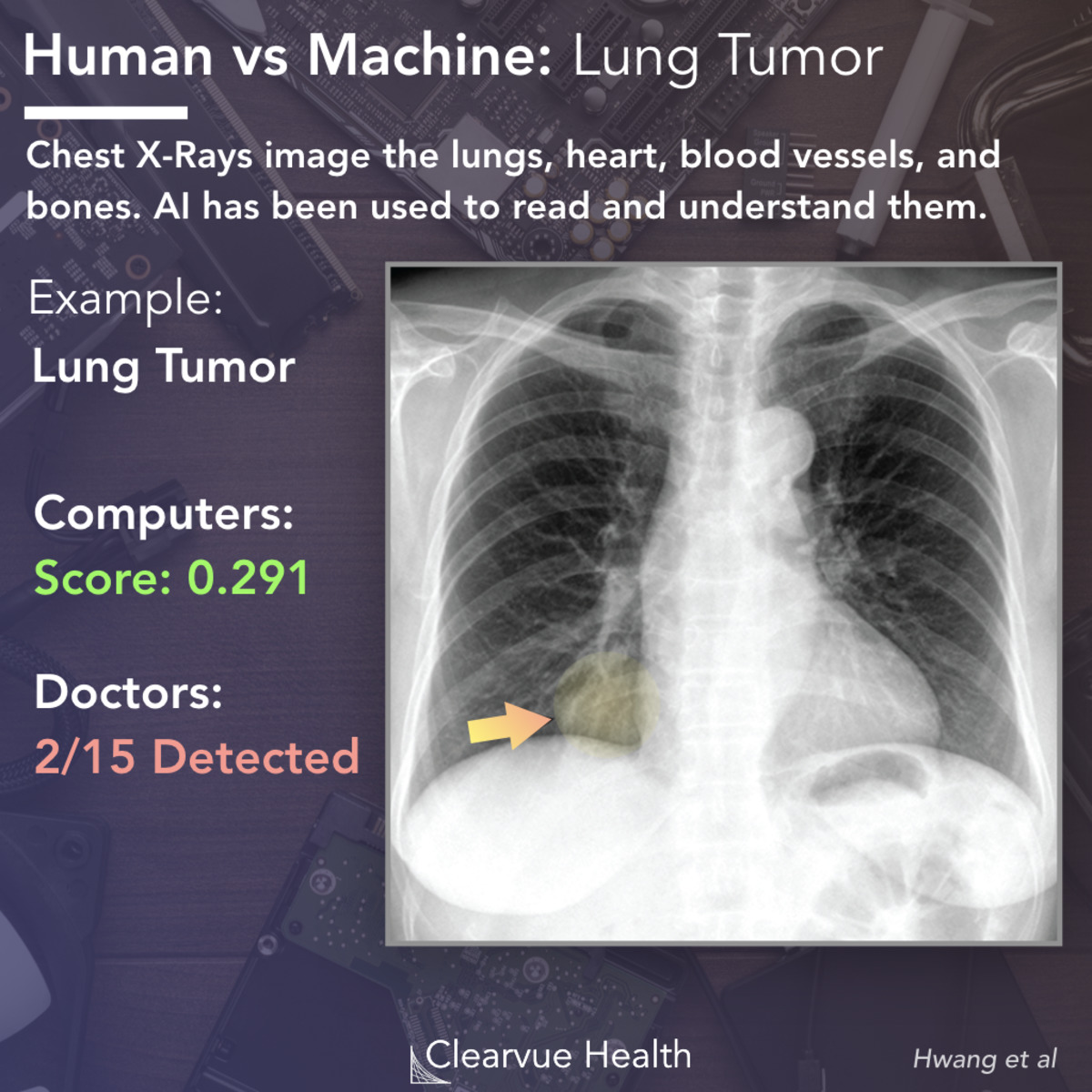 Ai Vs Radiologists Performance On Chest X Rays