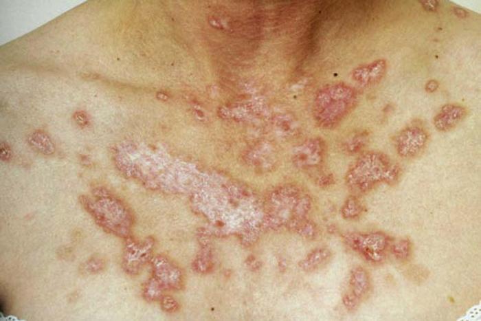 Salmonella Effects Body