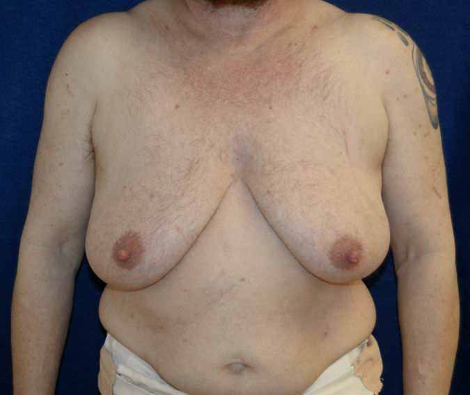 Mtf shrinkage pictures