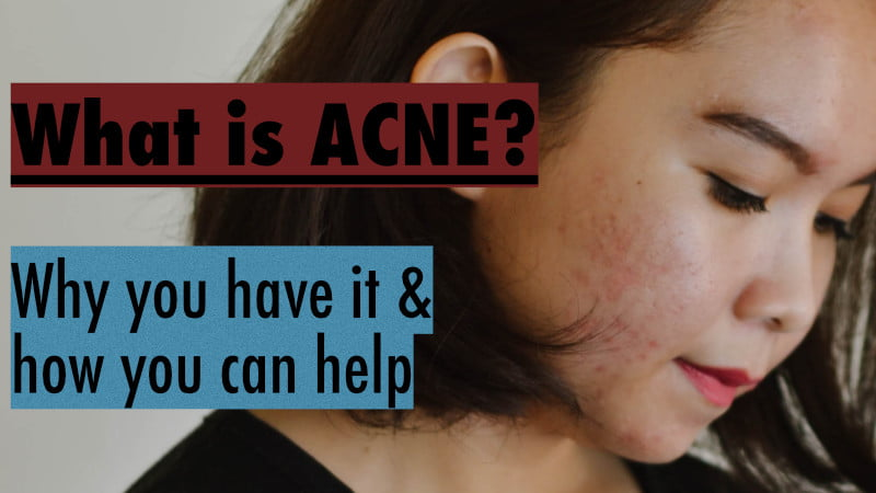 what is acne thumbnail
