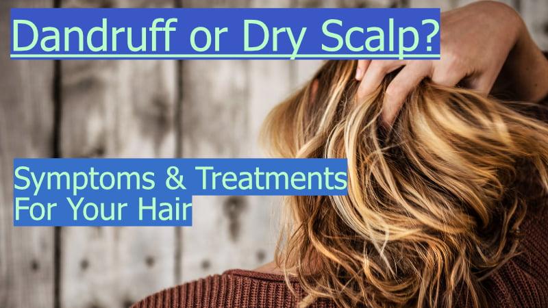 dandruff or dry scalp thumbnail