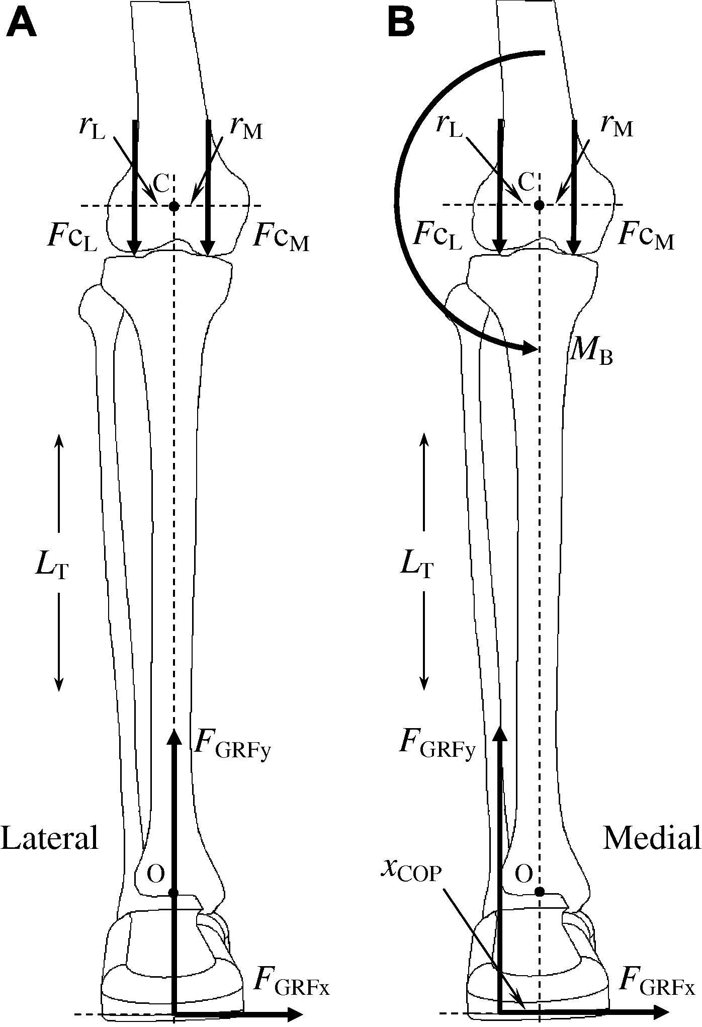 Effects Of Foot Orthoses And Valgus Bracing On The Knee