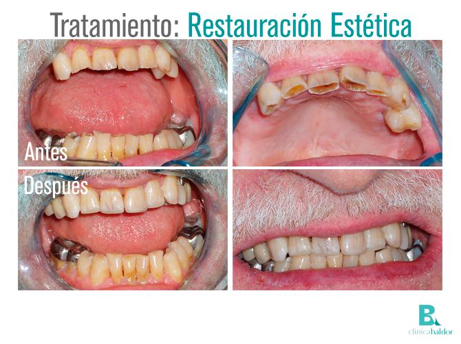 BAL-antes-y-después-CASO-Restauración-201607-av1