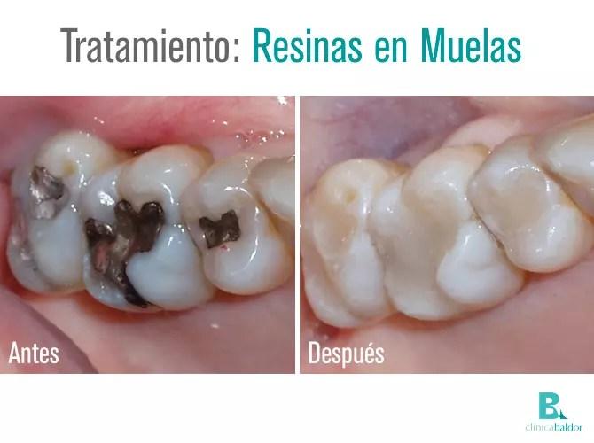 bal-antesydespuesresinaenmuelas-20150606-rm-av2