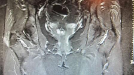Rm bursitis trocanterica derecha