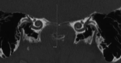 Tomografia Mastoide Normal, Normal Mastoid Tomography