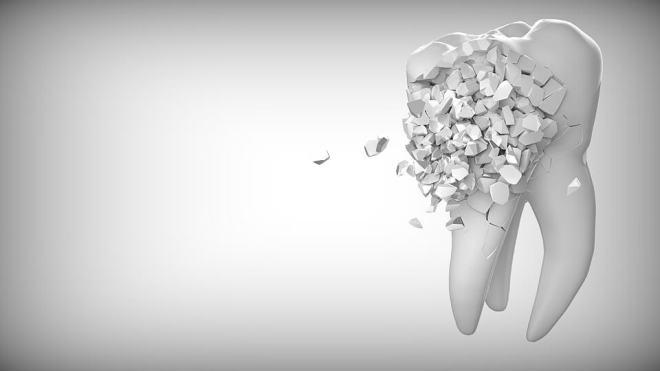 proceso-cicatrizacion-extraccion-muela