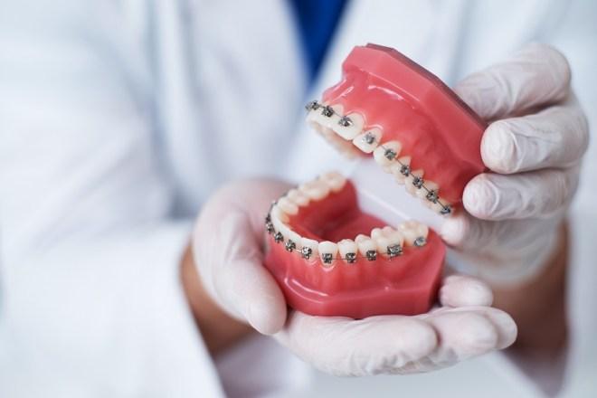 ortodoncia, que es ortodoncia, tipos de ortodoncia, tratamientos de ortodoncia