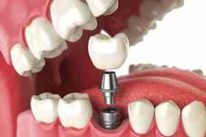 Implantologia dente con vite